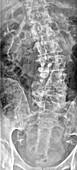 Kyphoscoliosis, X-ray