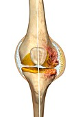 Normal knee and knee with osteoarthritis, illustration
