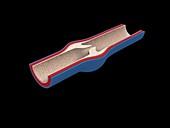 Vein valve, illustration