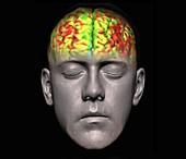 Human brain, fMRI scan