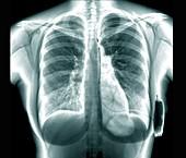 Cardiac defibrillator, chest X-ray