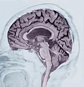 Alzheimer's disease, MRI brain scan