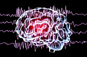 Brain and brain waves in epilepsy, illustration