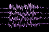 Brain waves in epilepsy, illustration
