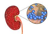 Acute pyelonephritis caused by Enterococcus bacteria, illust