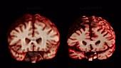 Normal Brain Vs Brain with Alzheimer's Disease, MRI Scan