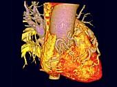 Cardiac blood vessel fistula, rotating 3D CT angiogram