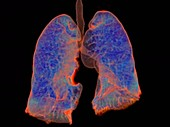 Human lungs, rotating 3D CT scan