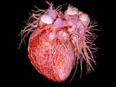 Human heart, rotating 3D CT angiogram