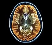 Human brain, axial MRI scan