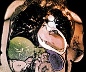 Chronic pericarditis, MRI scan