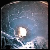 Cerebral aneurysm, angiogram