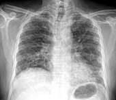 Pulmonary fibrosis, chest X-ray