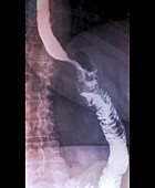 Gastric bypass, X-ray