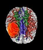 Glioblastoma brain cancer, DTI MRI scan