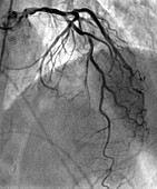 Left coronary artery network, coronarography scan