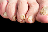 Psoriasis of the toenails