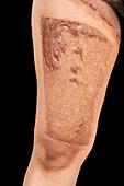 Hot water bottle burn on leg
