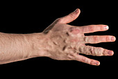 Vascular malformations of the hands