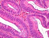 Tubular colon polyp, light micrograph