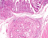 Colon cancer due to genetic mutation, light micrograph