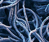 Bac anthr 6kx - Bakterien, Bacillus anthracis, 6 000:1