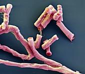 Bac anthr Sporen 10kx - Bakterien, Bacillus anthracis, Sporen 10 000:1