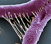 Bac anthracis 40kx - Bakterien, Bacillus anthracis, 40 000:1