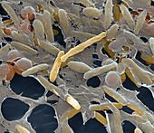 Myxococcus xanthus 14kx - Bakterien, Myxococcus xanthus 14 000:1