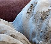 Molar 8 Fissur 70x - Molar 8 Fissur 70:1
