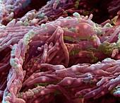 Mycobacterium tuberk 12kx A - Mycobacterium tuberculosis 12 000:1