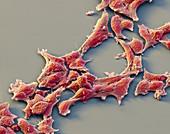 aRMS alveol Rhabdosark 1000x - alveoläre Rhabdomyosarkom-Zellen, 1000:1