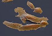 GK Osteosarkom 900x - Osteosarkom-Zellen aus Kultur, 900:1