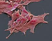 Ovarialkarzinom8 1500x - Ovarialkarzinom-Zellen aus Kultur, 1500:1