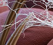 Spider silk on insect prey, SEM