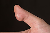 Hidradenitis suppurativa of the thumb