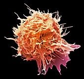 Herpes virus infected 293T cell, SEM