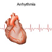 Heart arrhythmia, illustration