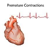 Premature heart contractions, illustration