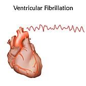 Ventricular fibrillation, illustration