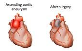 Ascending aortic aneurysm treatment, illustration