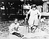 Children with tuberculosis, Czechoslovakia, 1919