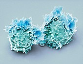 Jurkat cells, SEM