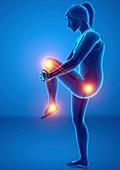 Woman with leg pain, illustration