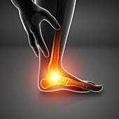 Man with foot pain, illustration