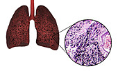 Smoker's lungs, illustration and light micrograph