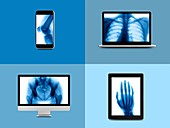 X-ray montage on digital device screens