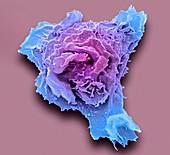 Leukaemia cell, SEM