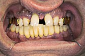 Curved front teeth