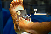 Total ankle replacement surgery